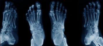 Рентгеновский снимок ноги собрания стоковые изображения
