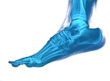 Рентгеновский снимок ноги стоковое изображение rf