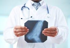 Рентгеновский снимок ноги Стоковые Изображения