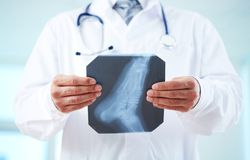 Рентгеновский снимок ноги Стоковые Изображения RF