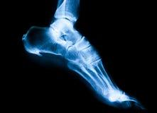 Рентгеновский снимок лодыжки Стоковое Изображение RF