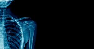 Рентгеновский снимок плеча знамени стоковое изображение rf