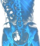 Рентгеновский снимок позвоночника Стоковое Фото