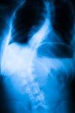 Рентгеновский снимок позвоночника Стоковая Фотография RF
