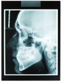 Рентгеновский снимок профиля челюсти человека для дантиста Стоковые Фото
