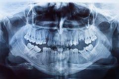 Рентгеновский снимок рта Стоковая Фотография