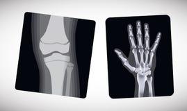 Рентгеновский снимок руки и ноги вектор Стоковые Изображения