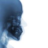 Рентгеновский снимок фильма нормального человеческого черепа боковой взгляд Стоковые Изображения RF
