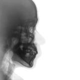 Рентгеновский снимок фильма нормального человеческого черепа боковой взгляд Стоковые Фотографии RF