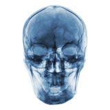 Рентгеновский снимок фильма нормального человеческого черепа Вид спереди Стоковое Изображение