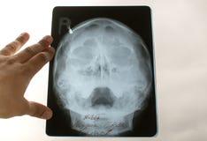 Рентгеновский снимок черепа ребенка Стоковая Фотография RF
