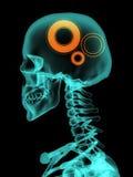 Рентгеновский снимок черепа с шестернями Стоковое Изображение RF