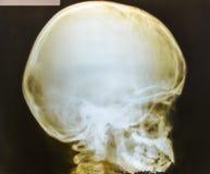 Рентгеновский снимок черепа человеческая медицинской Стоковая Фотография