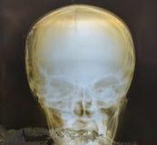 Рентгеновский снимок черепа человеческая медицинской Стоковое Фото