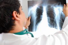 рентгеновский снимок Стоковые Фотографии RF