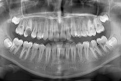 Рентгеновский снимок Стоковое Изображение RF