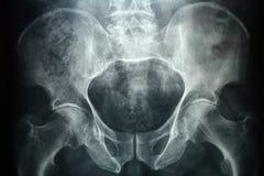 Рентгеновский снимок Pevic Стоковая Фотография RF