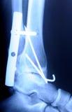 рентгенограмма человека трещиноватости лодыжки Стоковые Изображения