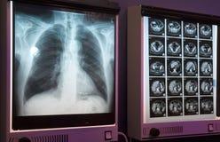 рентгенограмма Стоковая Фотография RF