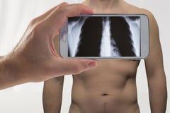 Рентгенограмма Стоковые Фото