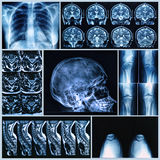 Рентгенографирование людских косточек Стоковые Изображения