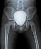 Рентгенографирование таза с контрастом в пузыре Стоковая Фотография RF