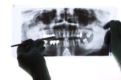 рентгенографирование Стоковые Фото