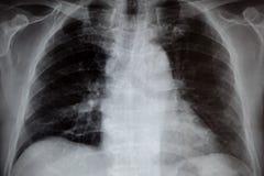 Рентген грудной клетки стоковая фотография rf