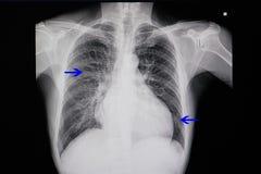 рентген грудной клетки пациента с остановкой сердца Стоковая Фотография