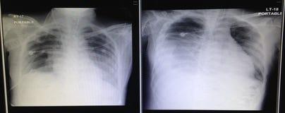 Рентген грудной клетки Стоковое Изображение RF