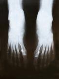 рентген ног пленки Стоковые Фото