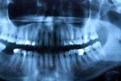рентген челюсти nandible Стоковое Изображение RF