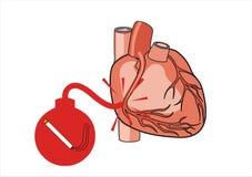 риск сердца нападения Бесплатная Иллюстрация