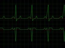 ритм нормального сердца Стоковое фото RF
