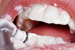 Рот и зубы конца-вверх Стоковое Фото