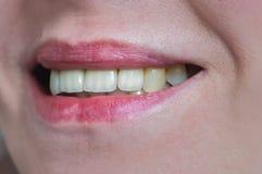 Рот с 4 простетическими верхними зубами стоковые изображения
