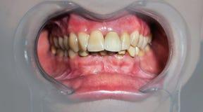 Рот с простетическими зубами стоковые изображения