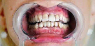 Рот с простетическими зубами стоковое фото rf
