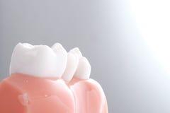 Родовая зубоврачебная модель зубов стоковое изображение rf