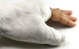 Рука в отделении скорой помощи на белой предпосылке стоковые изображения