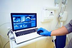 рука доктора в голубых перчатках держит мышь на ноутбуке с изображением зубоврачебного рентгеновского снимка стоковые изображения