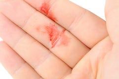 рука крови стоковое изображение rf