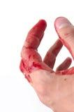 рука крови Стоковое фото RF