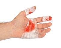 Рука с кровью и повязкой стоковая фотография rf