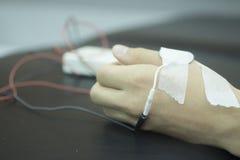 Рука человека в rehabiliation физиотерапии от traumatology Стоковое Изображение RF