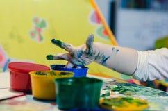 Рука ` s младенца в боли Стоковые Изображения RF