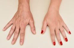 Руки женщины перед и после обработкой маникюра и кожи стоковые изображения rf
