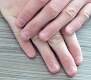 Руки подростка с заусенцами на ногте Ноготь клевов стоковые изображения rf