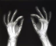 руки сжимая луч x Стоковые Фотографии RF