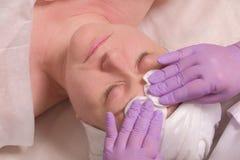 Руки cosmetologist в пурпурных перчатках обтерли женский лоб с пусковыми площадками хлопка Косметическая процедура для кожи сторо стоковое изображение